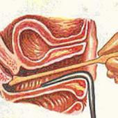 citología