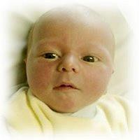 Ictericia En Recien Nacidos