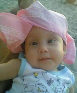 niña con hidrocefalia