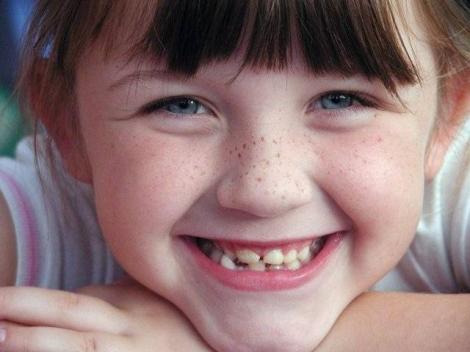 La desaparición de la pigmentación de la piel por el láser